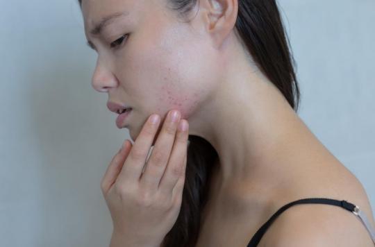 Maladies de peau : 66% des patients en état de \