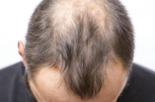 Comment le stress empêche les cheveux de pousser