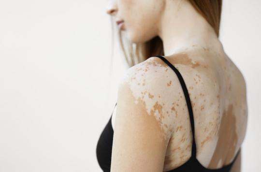 La chanteuse Pomme atteinte du vitiligo : qu'est-ce que cette maladie ?