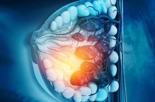 Cancer du sein : l'hormone liée à la production de lait en cause