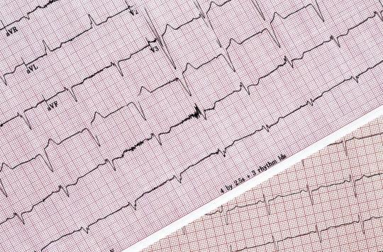 Prise en charge de la fibrillation atriale: les recommandations de la Société Européenne de Cardiologie