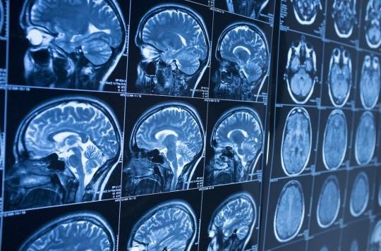 Des chirurgiens découvrent comme un « œuf de caille » dans le cerveau d'une patiente