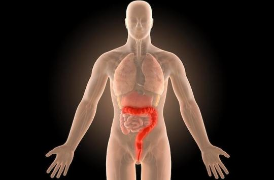 Cancer colorectal : un colorant peut augmenter la détection des polypes au cours de la coloscopie