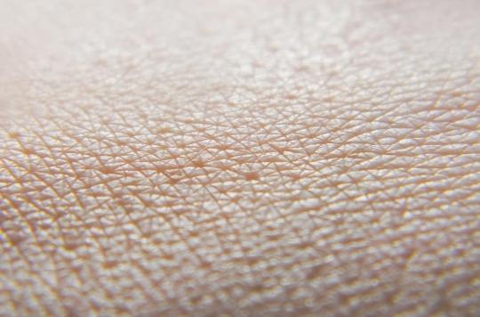 Nouvelle découverte sur la régénération des tissus après une grave brûlure