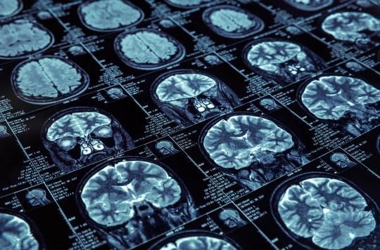 Alzheimer : un test sanguin permet de détecter la maladie 20 ans avant qu'elle ne se déclare