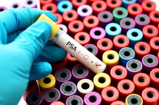 Dépistage du cancer de la prostate : le dosage systématique du PSA ne sauve pas de vie