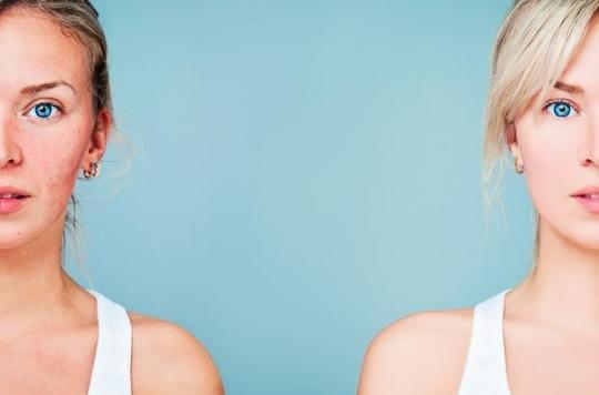 Stress, dépression, stigmatisation : l'acné affecte la qualité de vie