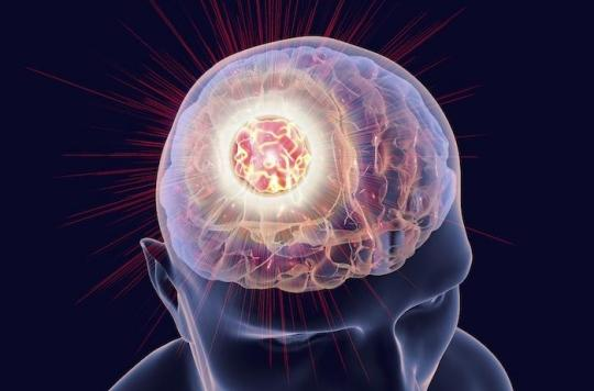 L'Androcur, ce traitement contraceptif qui multiplie les risques de tumeur au cerveau
