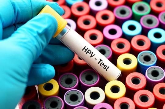 Cancer du col de l'utérus : des médecins et des patients militent pour privilégier le test HPV