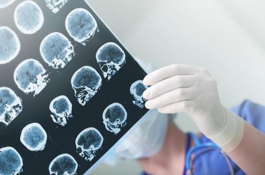 Mélanome : l'immunothérapie combinée réduit les métastases cérébrales