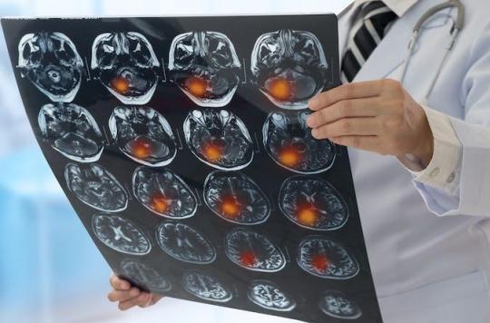 AVC : des symptômes atypiques peuvent retarder le diagnostic et le traitement