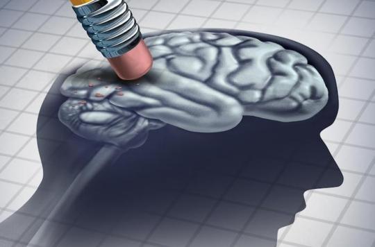 Questions sur le dépistage de la maladie d'Alzheimer