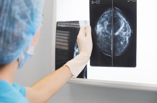 Cancer du sein : comment les tumeurs se propagent dans les ganglions