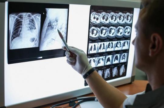Tuberculose multirésistante: un nouveau traitement change la donne