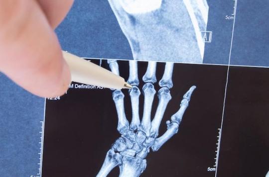 Rhumatismes : parlez avec les chercheurs qui se battent contre les maladies articulaires et osseuses