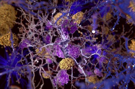 Alzheimer: la baisse du débit sanguin dans le cerveau pourrait (enfin) expliquer la maladie