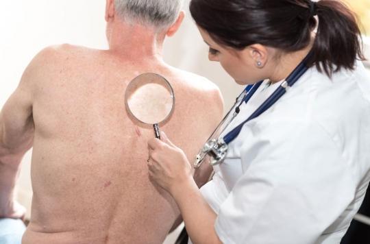 Un traitement réduirait de 75% les risques de cancer de la peau