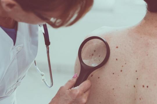 Mélanome : l'immunothérapie avant la chirurgie limite les risques de rechute