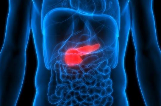 Cancer du pancréas : la chimio-radiothérapie avant la chirurgie améliore la survie