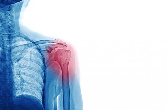 Fracture de l'épaule : porter une simple écharpe donne les mêmes résultats que la chirurgie