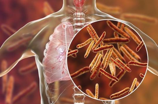 Tuberculose : le plan de l'ONU pour éradiquer la maladie infectieuse la plus mortelle au monde