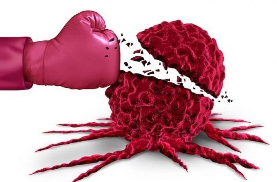 Cancer du sein triple négatif : l'immunothérapie apporte de nouveaux espoirs