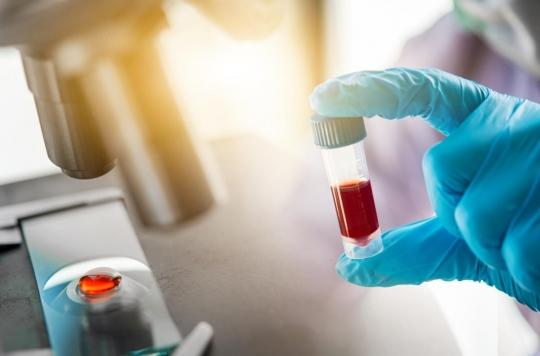 Cancer de la prostate : des risques de faux positifs avec la biopsie liquide