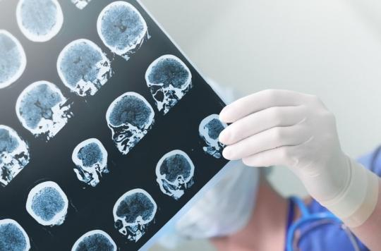 Épilepsie : la découverte de trois molécules donne l'espoir de nouveaux traitements
