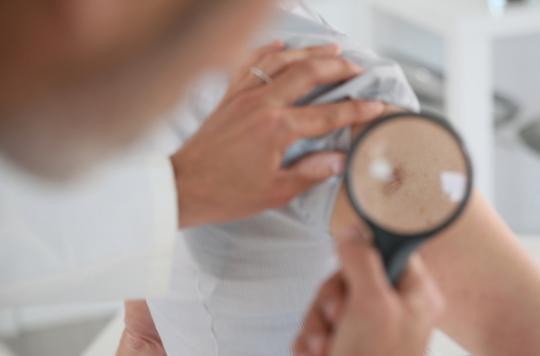 Mélanome avancé : l'immunothérapie confirme son efficacité