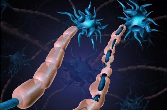 Sclérose en plaques : qu'est-ce que le traitement par cellules souches ?