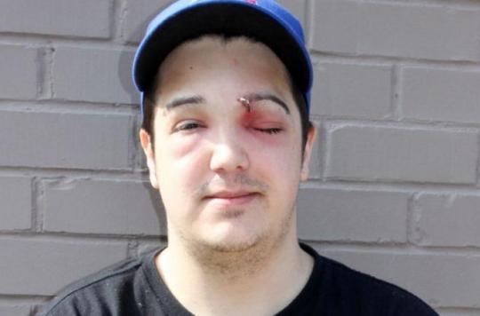 Un Canadien a failli perdre la vue en crevant un bouton