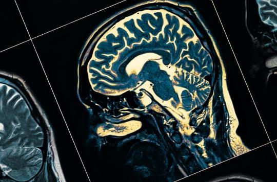 Une étude suggère un lien entre le trouble bipolaire et la maladie de Parkinson