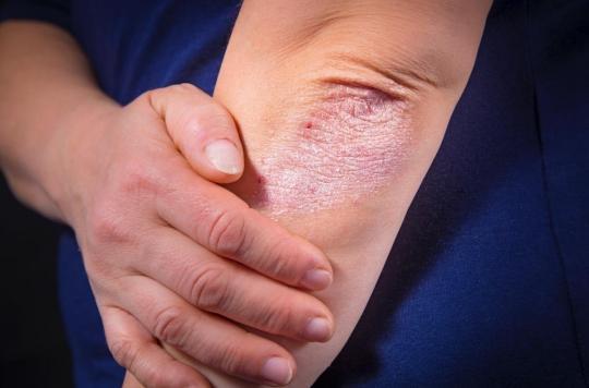 Psoriasis : des médicaments peuvent le provoquer ou l'aggraver
