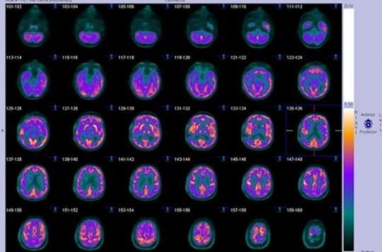 Dépression : un marqueur permet de prédire rapidement la réponse au traitement