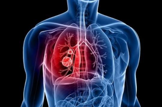 Cancer du poumon: l'association d'une immunothérapie à la chimiothérapie améliore la survie