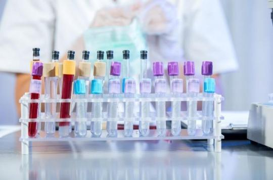 Cancer : les chercheurs mettent au point un test ADN capable de le détecter en dix minutes