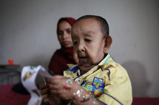 Une maladie rare donne à un enfant l'apparence d'un vieillard