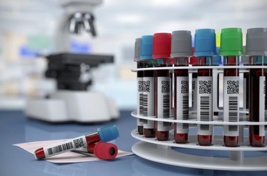 Cholestérol : les Français connaissent mal les risques