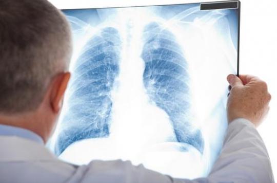 Infection respiratoire : des tests pour éviter les antibiotiques inutiles