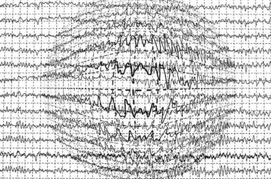Les traitements modernes contre l'épilepsie ne seraient pas plus efficaces que les anciens