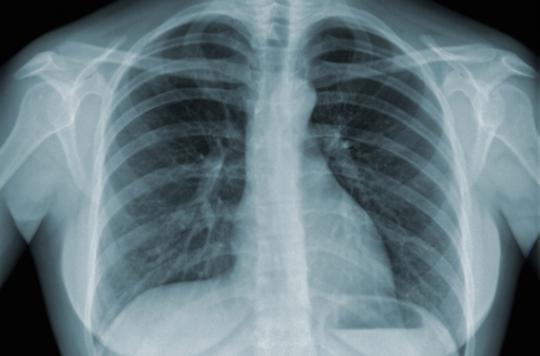 Poumon : fumer un paquet par jour engendre 150 mutations génétiques