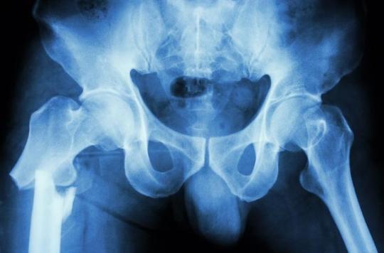Un simple questionnaire protège les personnes âgées des fractures de la hanche