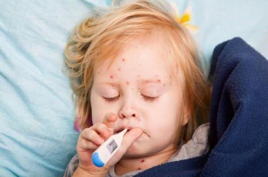 Epidémie de rougeole : les signes d'alerte et comment l'éviter ?