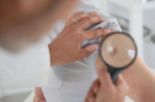 Cancer de la peau : 300 dermatologues s'ouvrent au public
