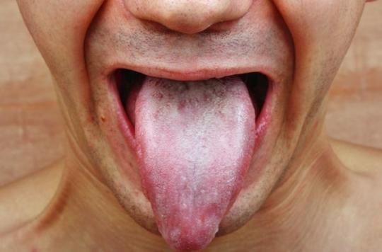 Les probiotiques ou les chewing-gums au xylitol n'ont aucun effet sur l'angine