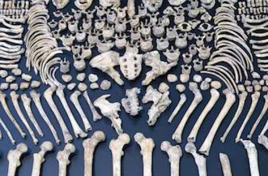 Ostéoporose : en silence, elle tue plus de femmes que la route