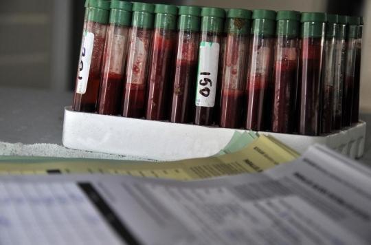 Tuberculose : entre un quart et un cinquième de la population serait porteuse de la maladie