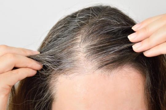 Le stress nous fait bien des cheveux blancs