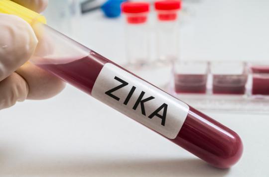 Zika : les demandes d'avortement ont doublé au Brésil