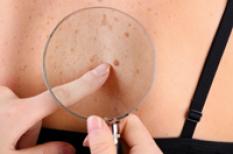 Mélanome : un cancer de la peau lié principalement au soleil
